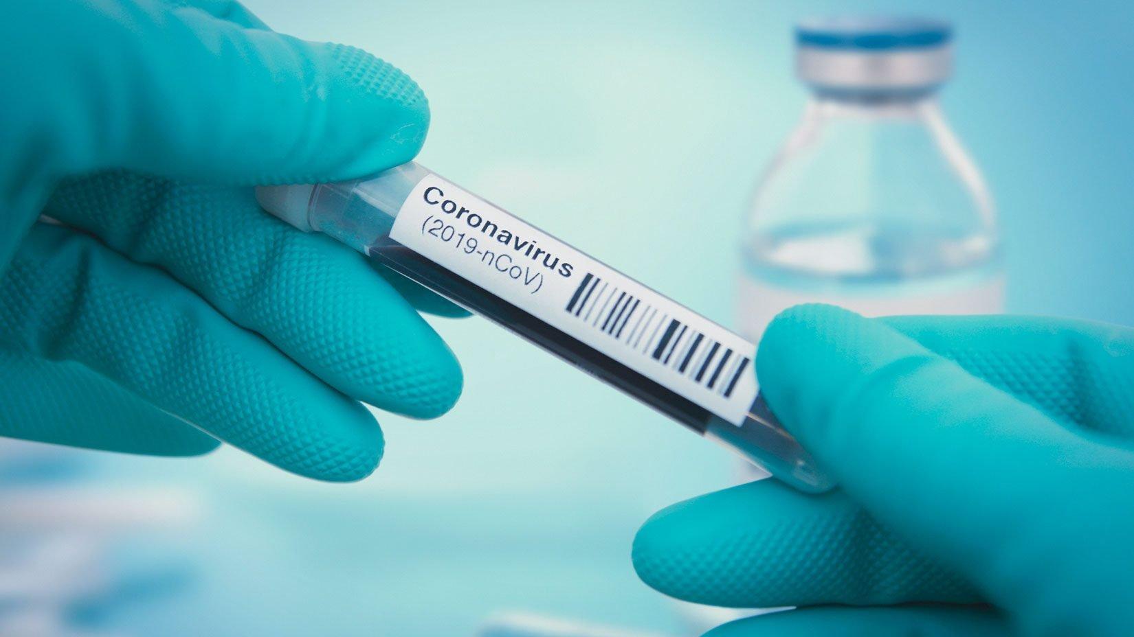 Fallzahlen, Symptome & Behandlung des Coronavirus in Deutschland